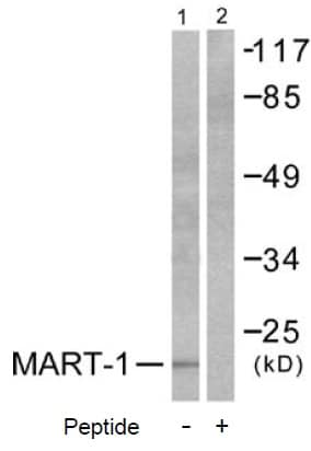 Western blot - MelanA antibody (ab53135)