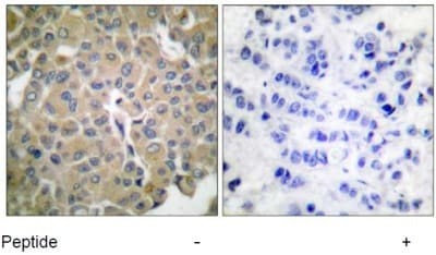 Immunohistochemistry (Formalin/PFA-fixed paraffin-embedded sections) - MelanA antibody (ab53135)