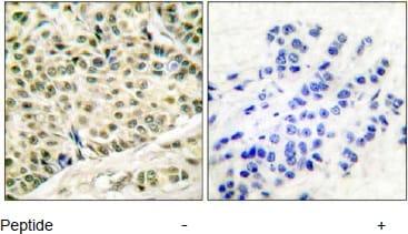 Immunohistochemistry (Formalin/PFA-fixed paraffin-embedded sections) - MCM2 antibody (ab53136)