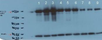 Western blot - ErbB 2 (phospho Y1139) antibody [EP1448Y] (ab53290)