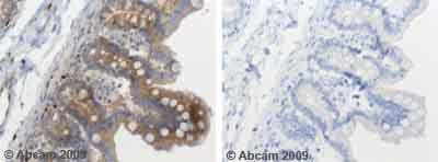 Immunohistochemistry (Formalin/PFA-fixed paraffin-embedded sections) - SOCS3  antibody (ab53984)