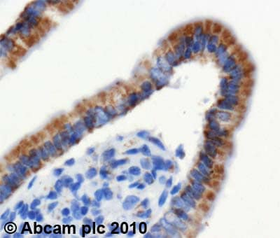 Immunohistochemistry (Formalin/PFA-fixed paraffin-embedded sections)-HADHA antibody(ab54477)