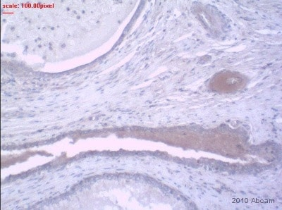 Immunohistochemistry (Formalin/PFA-fixed paraffin-embedded sections) - CST6 antibody (ab54572)