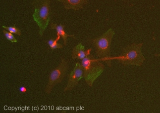 Immunocytochemistry/ Immunofluorescence-ABL2 antibody(ab54695)