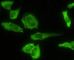 Immunocytochemistry/ Immunofluorescence - Acid Phosphatase 2 antibody (ab54721)
