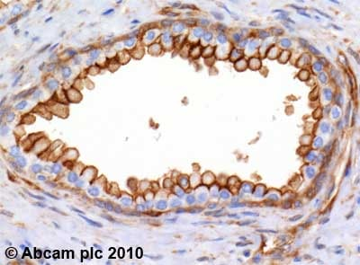 Immunohistochemistry (Formalin/PFA-fixed paraffin-embedded sections)-Annexin II antibody(ab54771)