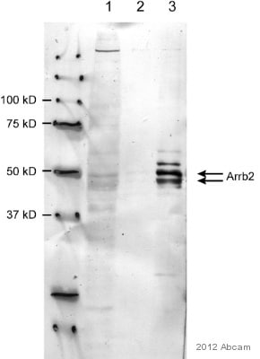 Immunoprecipitation - Anti-Beta Arrestin 2 antibody (ab54790)