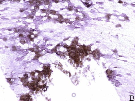 Immunohistochemistry (Formalin/PFA-fixed paraffin-embedded sections) - Anti-HOXC13 antibody (ab55251)