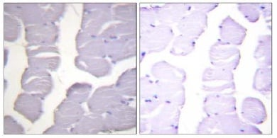 Immunohistochemistry (Formalin/PFA-fixed paraffin-embedded sections) - IKK alpha + IKK beta (phospho S180 + S181) antibody (ab55341)