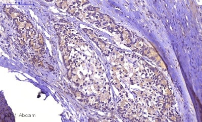 Immunohistochemistry (Formalin/PFA-fixed paraffin-embedded sections) - Anti-KRAS+HRAS+NRAS antibody (ab55391)
