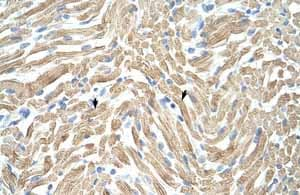 Immunohistochemistry (Formalin/PFA-fixed paraffin-embedded sections)-Anti-Tropomyosin 1 (alpha) antibody(ab55915)
