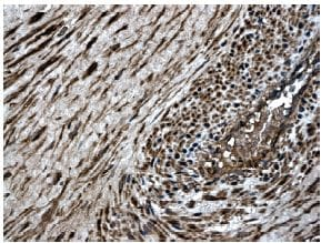 Immunohistochemistry (Formalin/PFA-fixed paraffin-embedded sections) - MMP8 antibody [MM0023-7A11] (ab56303)