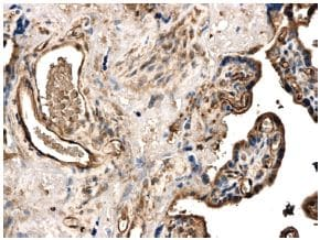 Immunohistochemistry (Formalin/PFA-fixed paraffin-embedded sections) - MMP25 antibody [MM0029-2B5] (ab56309)