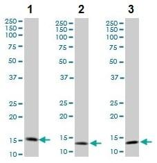Western blot - Anti-TOMM20 antibody (ab56783)