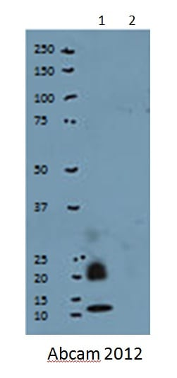 Western blot - Ubiquitin protein (Tagged) (ab57798)