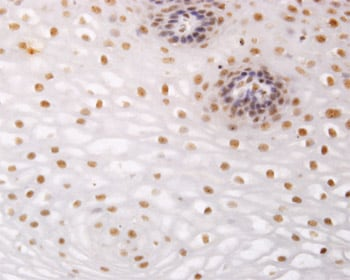 Immunohistochemistry (Formalin/PFA-fixed paraffin-embedded sections)-NR2C2 antibody(ab58365)