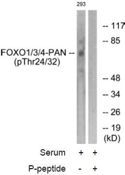 Western blot - FOXO1 + FOXO3 + FOXO4 (phospho T24 + T32) antibody (ab58517)