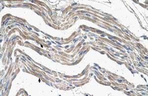 Immunohistochemistry (Formalin/PFA-fixed paraffin-embedded sections) - Anti-IDH3A antibody (ab58641)
