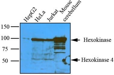 Western blot - pan-Hexokinase antibody [4D7] (ab58979)