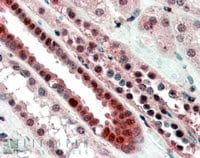 Immunohistochemistry (Formalin/PFA-fixed paraffin-embedded sections) - TCF3 / E2A antibody (ab59117)