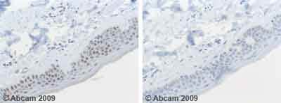 Immunohistochemistry (Formalin/PFA-fixed paraffin-embedded sections)-MiTF antibody(ab59232)