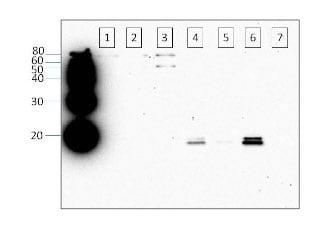 Western blot - alpha Synuclein (phospho S129) antibody (ab59264)