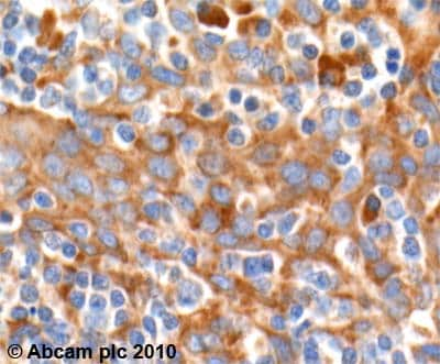 Immunohistochemistry (Formalin/PFA-fixed paraffin-embedded sections) - Anti-AICDA antibody - ChIP Grade (ab59361)