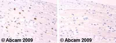 Immunohistochemistry (Formalin/PFA-fixed paraffin-embedded sections)-Cardiac Troponin I antibody(ab59376)