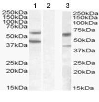 Western blot - DGAT2 antibody (ab59493)
