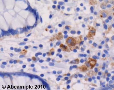 Immunohistochemistry (Formalin/PFA-fixed paraffin-embedded sections) - Peroxiredoxin 2 antibody (ab59539)