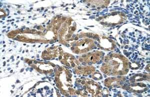 Immunohistochemistry (Formalin/PFA-fixed paraffin-embedded sections)-Anti-HDAC9 antibody - ChIP Grade(ab59718)
