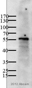 Western blot - Anti-BMPR1A antibody (ab59945)