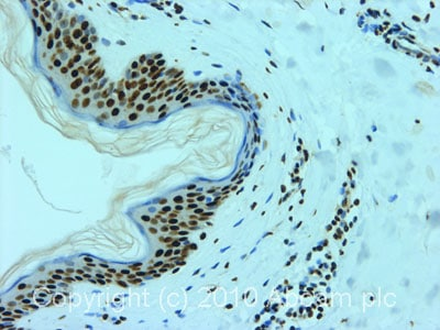 Immunohistochemistry (Formalin/PFA-fixed paraffin-embedded sections) - hnRNP L antibody [4D11] (ab6106)