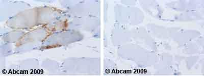 Immunohistochemistry (Formalin/PFA-fixed paraffin-embedded sections)-NCAM antibody [ERIC-1](ab6123)