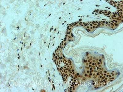 Immunohistochemistry (Formalin/PFA-fixed paraffin-embedded sections)-Aly antibody [11G5](ab6141)