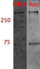 Western blot - Dynein heavy chain antibody [440.4] (ab6305)