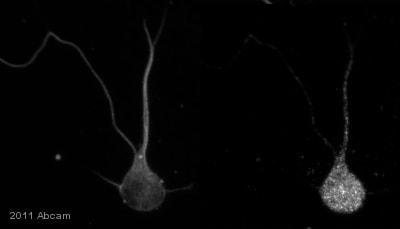 Immunocytochemistry/ Immunofluorescence - Dynein heavy chain antibody [440.4] (ab6305)