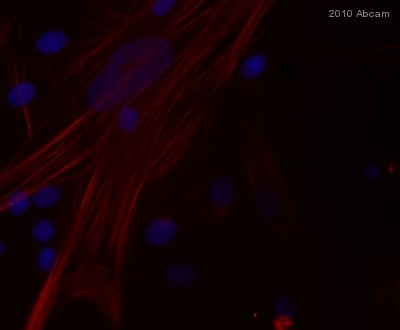 Immunocytochemistry/ Immunofluorescence - Goat polyclonal Secondary Antibody to Mouse IgG - H&L (TR) (ab6787)