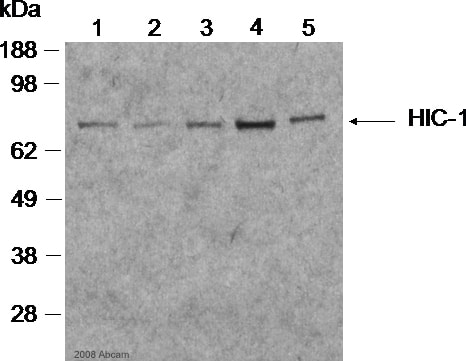 Western blot - Sheep polyclonal Secondary Antibody to Mouse IgG - H&L (HRP) (ab6808)