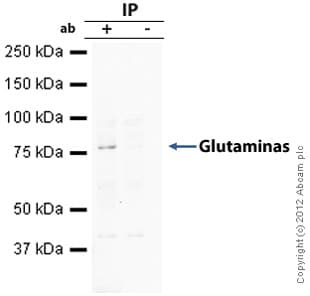 Immunoprecipitation - Anti-Glutaminase antibody (ab60709)