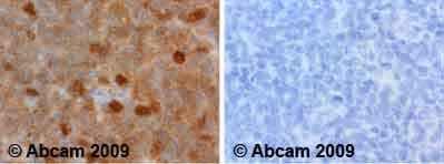 Immunohistochemistry (Formalin/PFA-fixed paraffin-embedded sections)-PKC delta (phospho T505) antibody(ab60992)