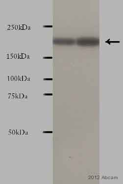 Western blot - Anti-CDC42 Binding Protein Kinase Beta antibody (ab61328)