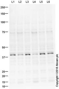 Western blot - DBX1 antibody (ab61488)