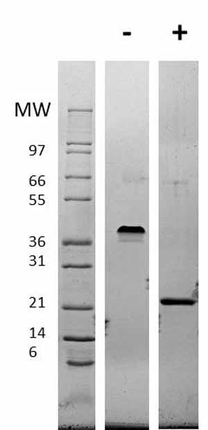 Other-VEGF 165A protein (Active)(ab62134)