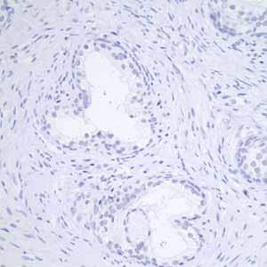 Immunohistochemistry (Formalin/PFA-fixed paraffin-embedded sections) - Anti-GCDFP 15 antibody [EP1582Y] - Aminoterminal end (ab62363)