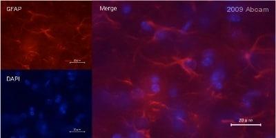 Immunohistochemistry (Frozen sections) - GFAP (phospho S38) antibody (ab62479)
