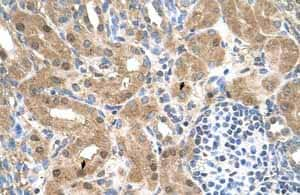 Immunohistochemistry (Formalin/PFA-fixed paraffin-embedded sections)-Anti-CCDC112 antibody(ab62524)