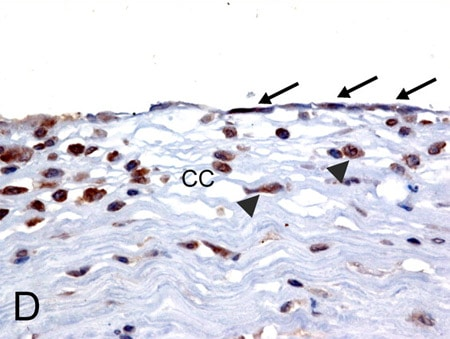 Immunohistochemistry (Formalin/PFA-fixed paraffin-embedded sections) - Anti-MICA antibody (ab62540)