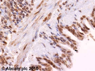 Immunohistochemistry (Formalin/PFA-fixed paraffin-embedded sections)-SOCS1  antibody(ab62584)
