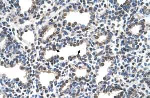 Immunohistochemistry (Formalin/PFA-fixed paraffin-embedded sections)-Anti-KCTD6 antibody(ab62596)